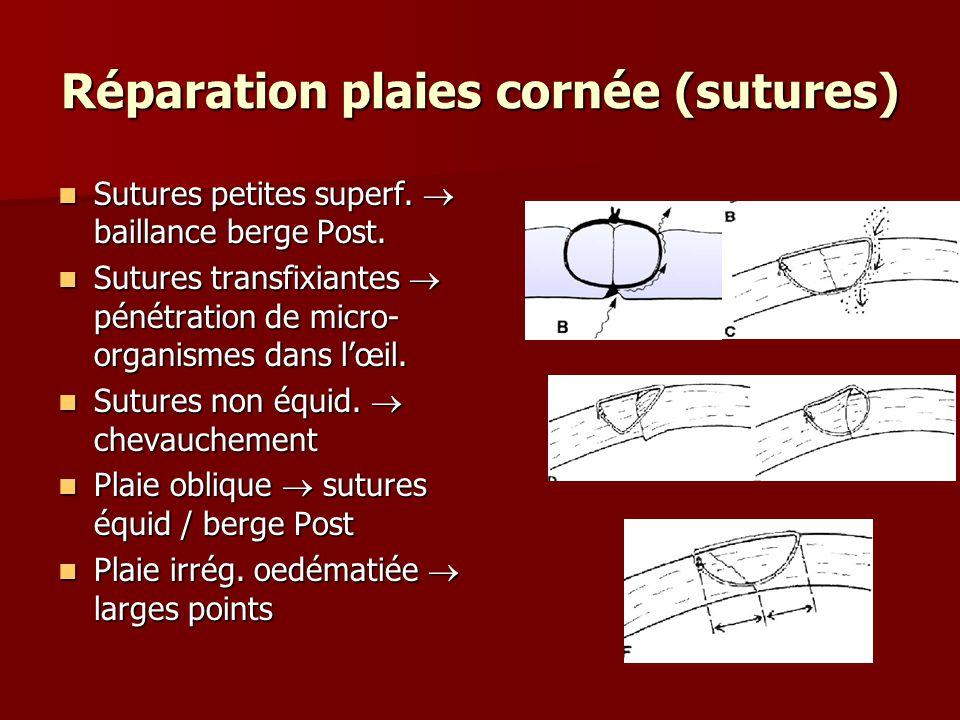 Réparation plaies cornée (sutures) Sutures petites superf.  baillance berge Post. Sutures petites superf.  baillance berge Post. Sutures transfixian