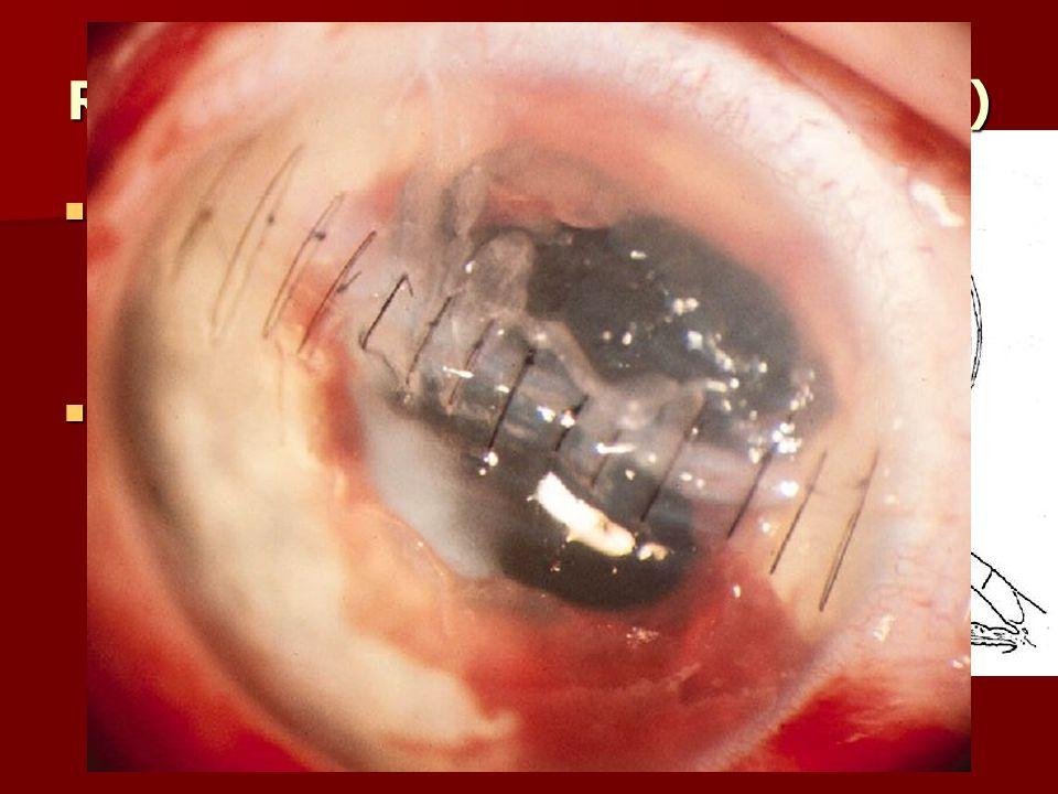 Réparation plaies cornée (sutures) Plaie passant par l'axe visuel : Plaie passant par l'axe visuel : –Sutures de part et d'autre –Sinon, Sutures petit