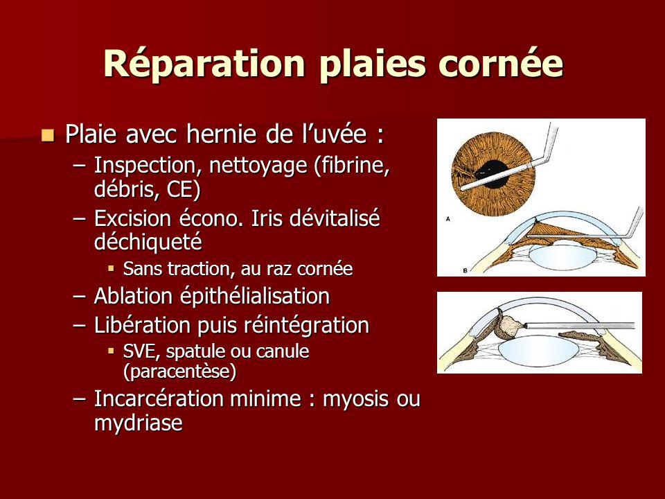 Réparation plaies cornée Plaie avec hernie de l'uvée : Plaie avec hernie de l'uvée : –Inspection, nettoyage (fibrine, débris, CE) –Excision écono. Iri