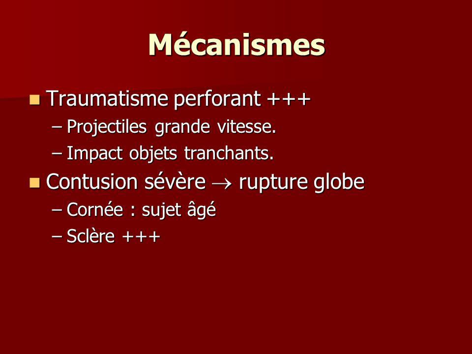 Mécanismes Traumatisme perforant +++ Traumatisme perforant +++ –Projectiles grande vitesse. –Impact objets tranchants. Contusion sévère  rupture glob