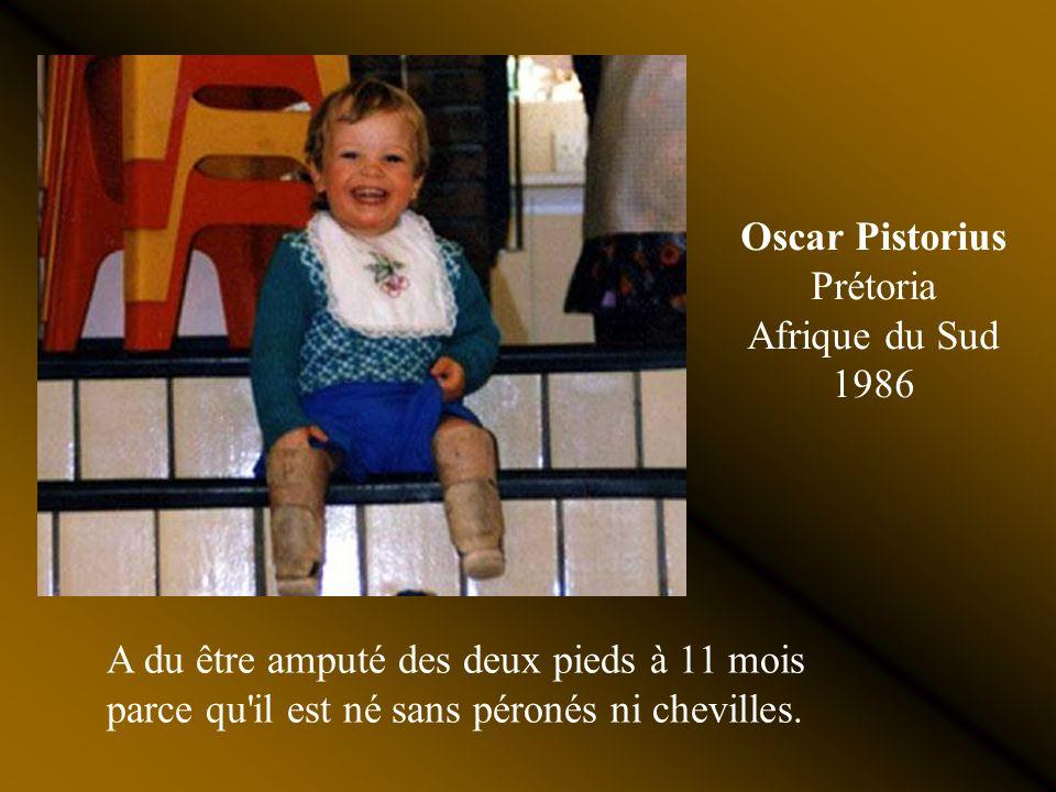 Oscar Pistorius Prétoria Afrique du Sud 1986 A du être amputé des deux pieds à 11 mois parce qu il est né sans péronés ni chevilles.