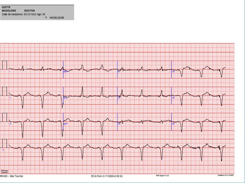 Ponction de l'épanchement pleural Protéine = 14 g/l Dosage BNP = 4315