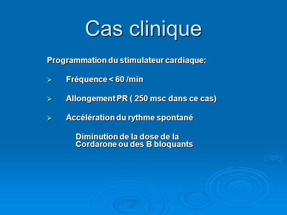 Programmation du stimulateur cardiaque:  Fréquence < 60 /min  Allongement PR ( 250 msc dans ce cas)  Accélération du rythme spontané Diminution de