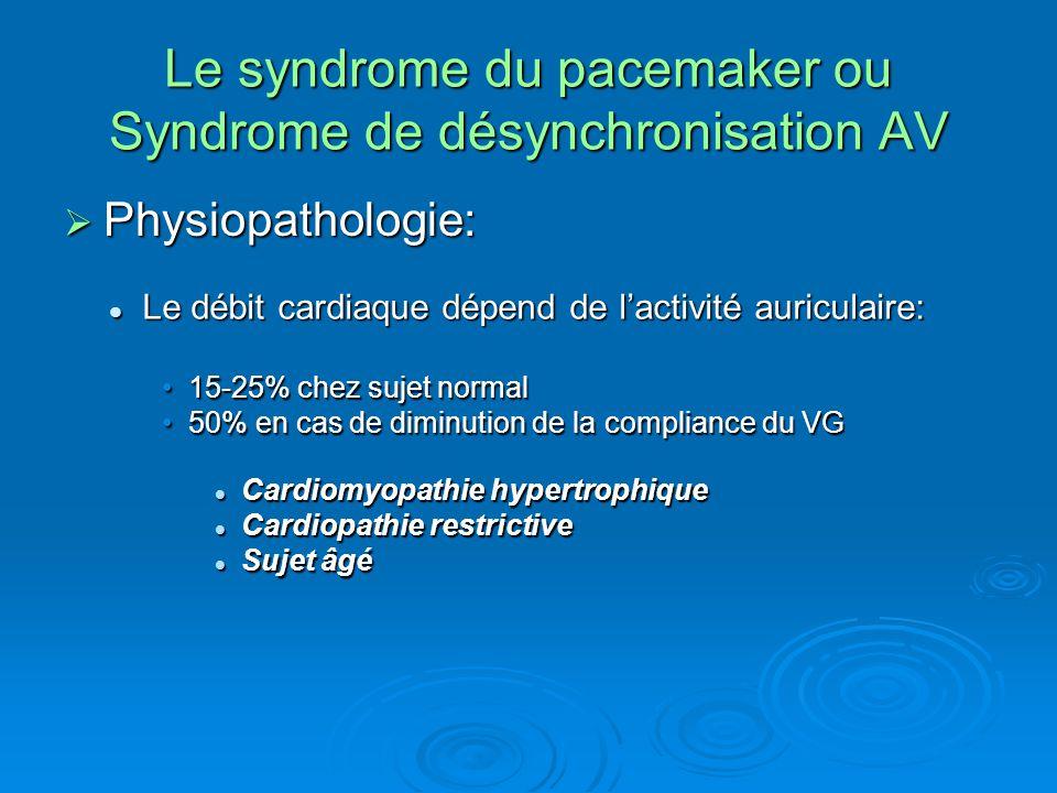 Le syndrome du pacemaker ou Syndrome de désynchronisation AV  Physiopathologie: Le débit cardiaque dépend de l'activité auriculaire: Le débit cardiaq