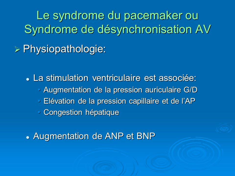 Le syndrome du pacemaker ou Syndrome de désynchronisation AV  Physiopathologie: La stimulation ventriculaire est associée: La stimulation ventriculai