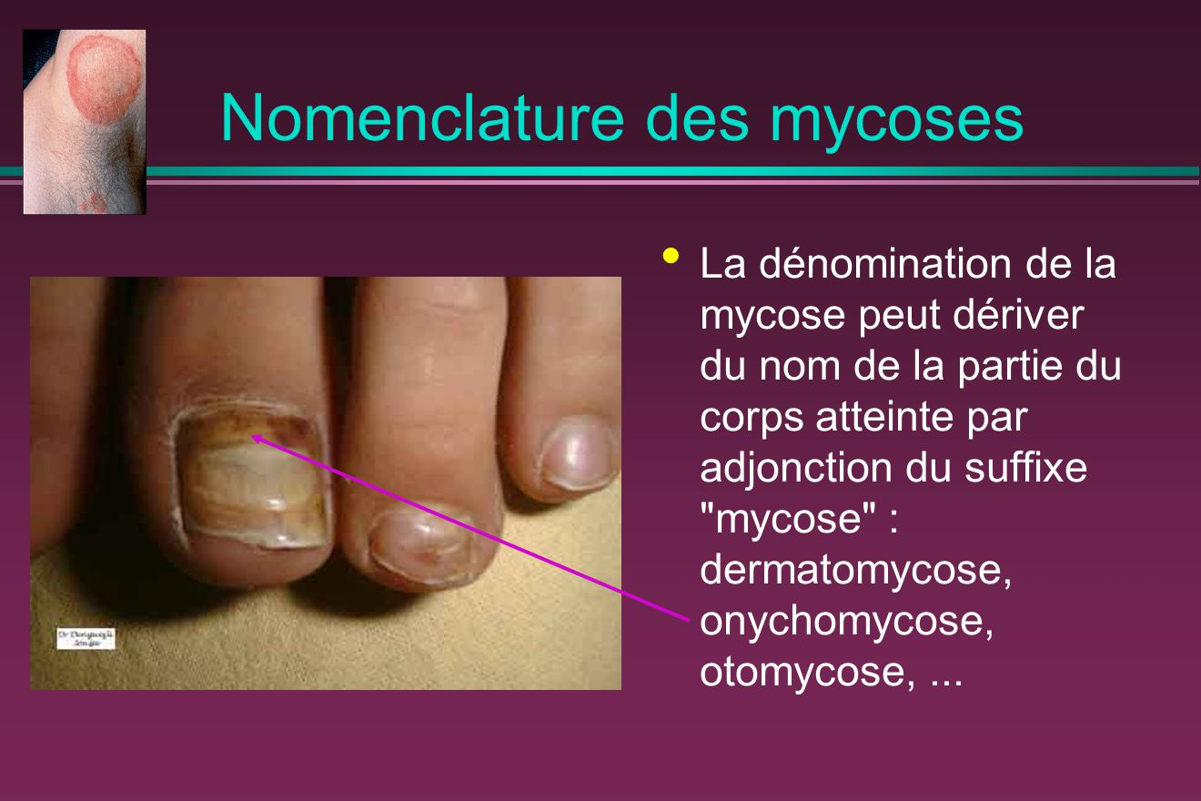 Diagnostic des mycoses Diagnostic clinique