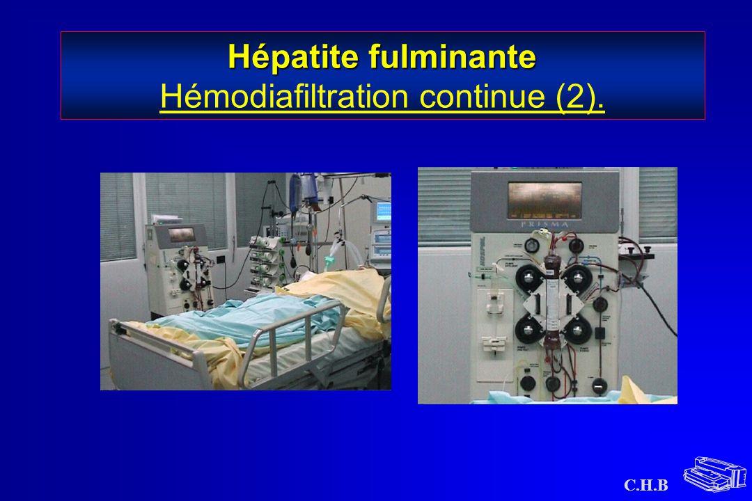 C.H.B Hépatite fulminante Hépatite fulminante Hémodiafiltration continue (2).