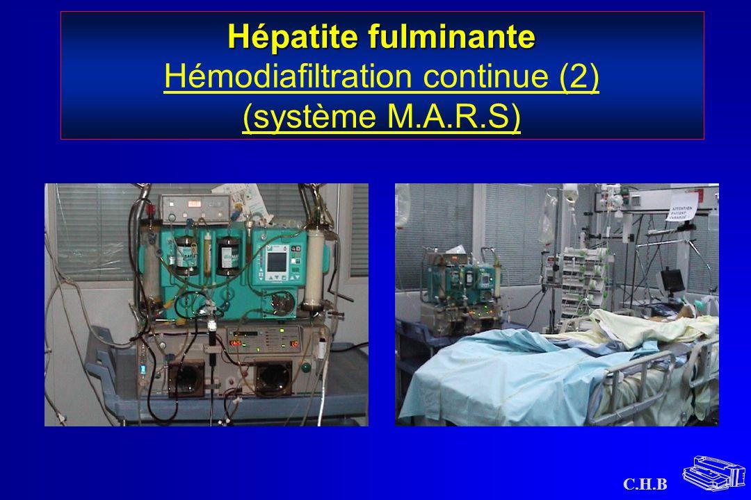 C.H.B Hépatite fulminante Hépatite fulminante Hémodiafiltration continue (2) (système M.A.R.S)