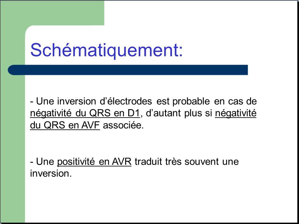 Schématiquement: - Une inversion d'électrodes est probable en cas de négativité du QRS en D1, d'autant plus si négativité du QRS en AVF associée. - Un