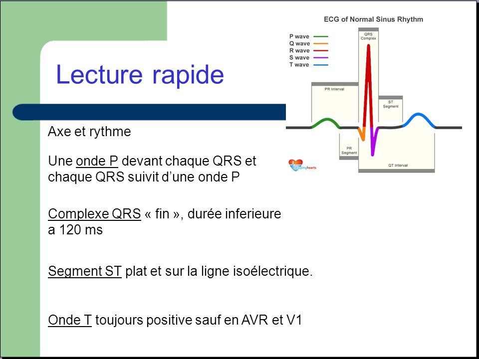 Axe et rythme Lecture rapide Une onde P devant chaque QRS et chaque QRS suivit d'une onde P Complexe QRS « fin », durée inferieure a 120 ms Segment ST