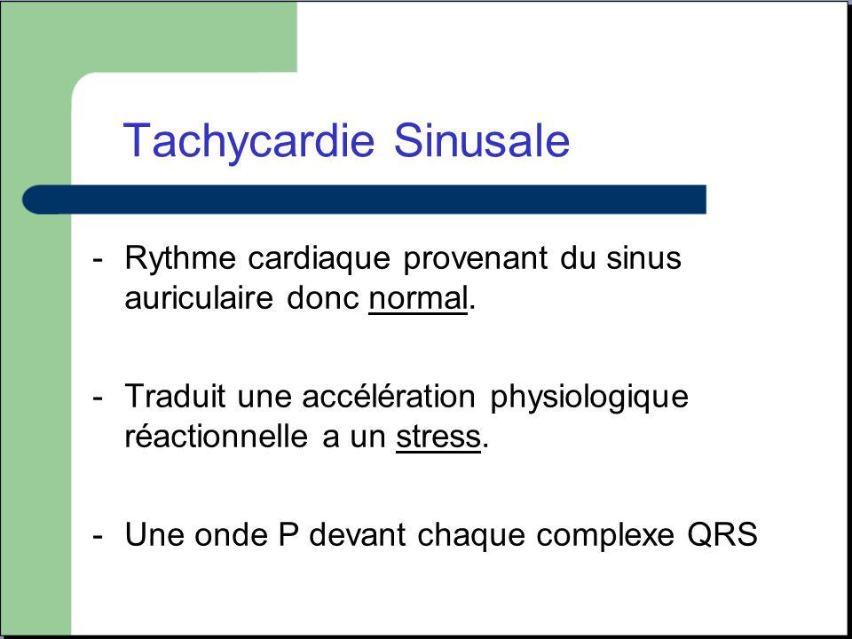 Tachycardie Sinusale -Rythme cardiaque provenant du sinus auriculaire donc normal. -Traduit une accélération physiologique réactionnelle a un stress.