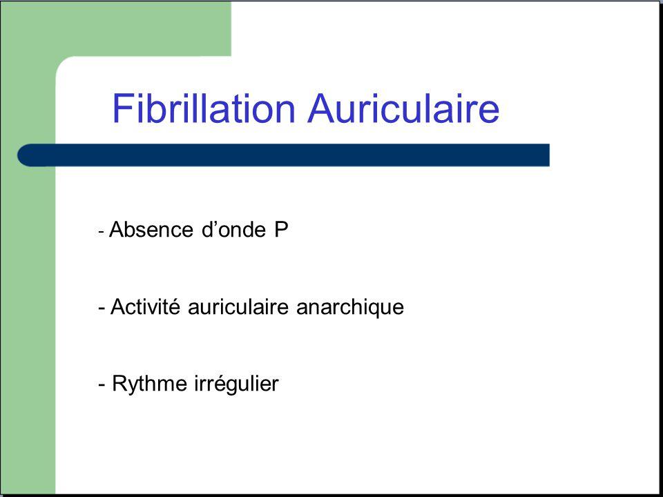 Fibrillation Auriculaire - Absence d'onde P - Activité auriculaire anarchique - Rythme irrégulier