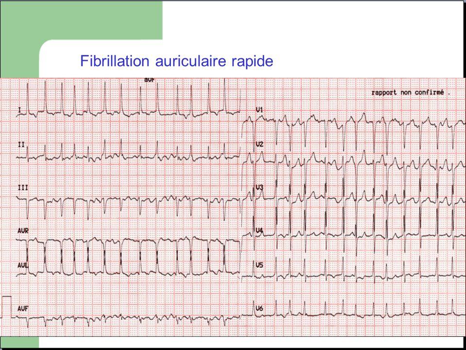 Fibrillation auriculaire rapide