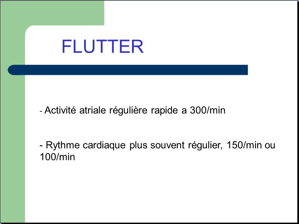 FLUTTER - Activité atriale régulière rapide a 300/min - Rythme cardiaque plus souvent régulier, 150/min ou 100/min
