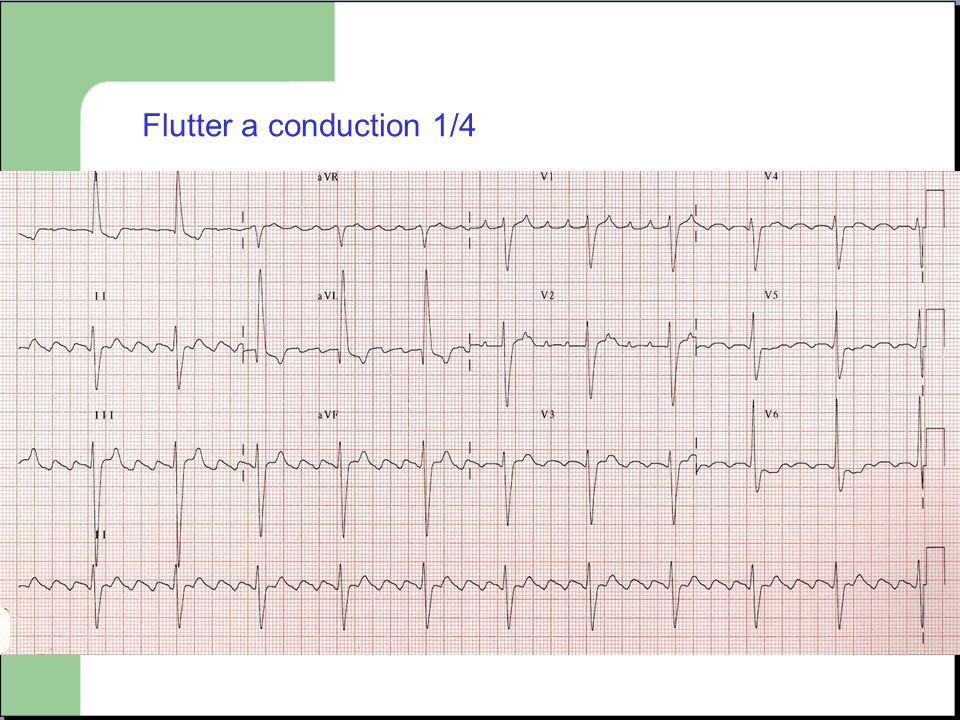 Flutter a conduction 1/4