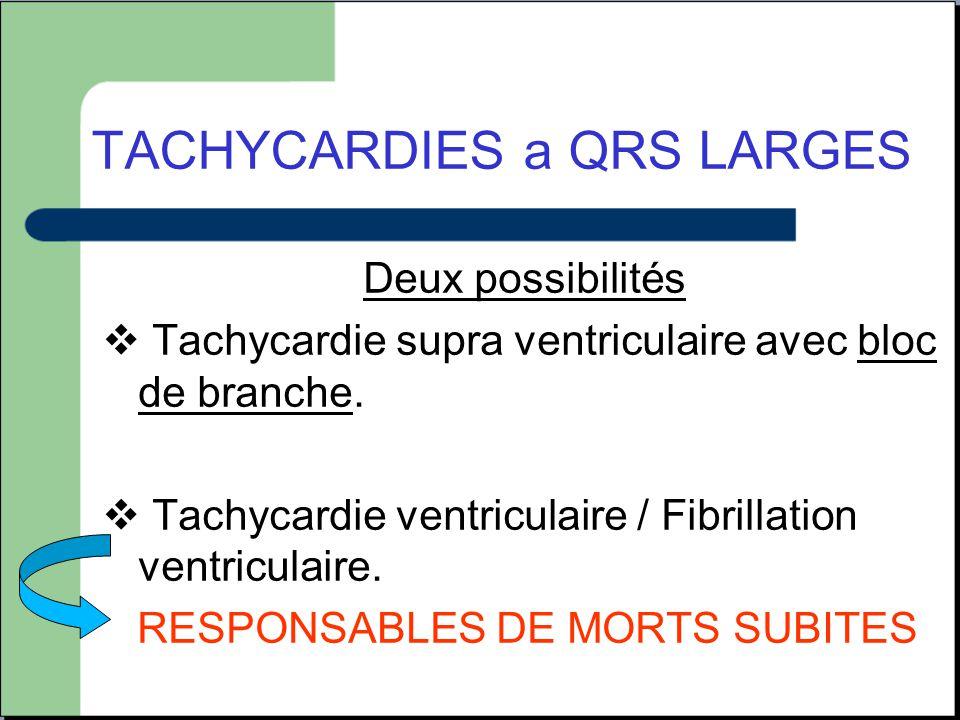 Deux possibilités  Tachycardie supra ventriculaire avec bloc de branche.  Tachycardie ventriculaire / Fibrillation ventriculaire. RESPONSABLES DE MO