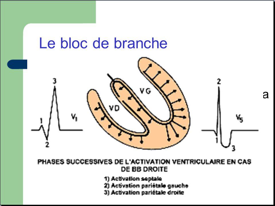 Le bloc de branche Elargissement du QRS (plus de 120ms) lié a une mauvaise conduction dans une des deux branches du faisceau de HIS. Fréquent, peu de