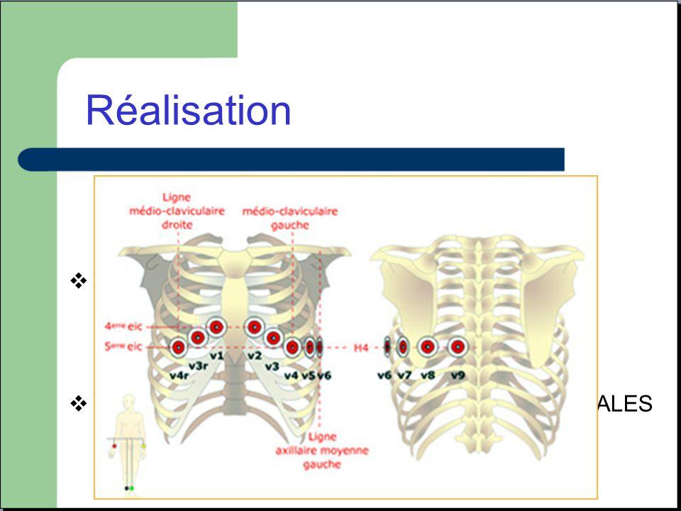 DERIVATION PRECORDIALES (plan horizontal)
