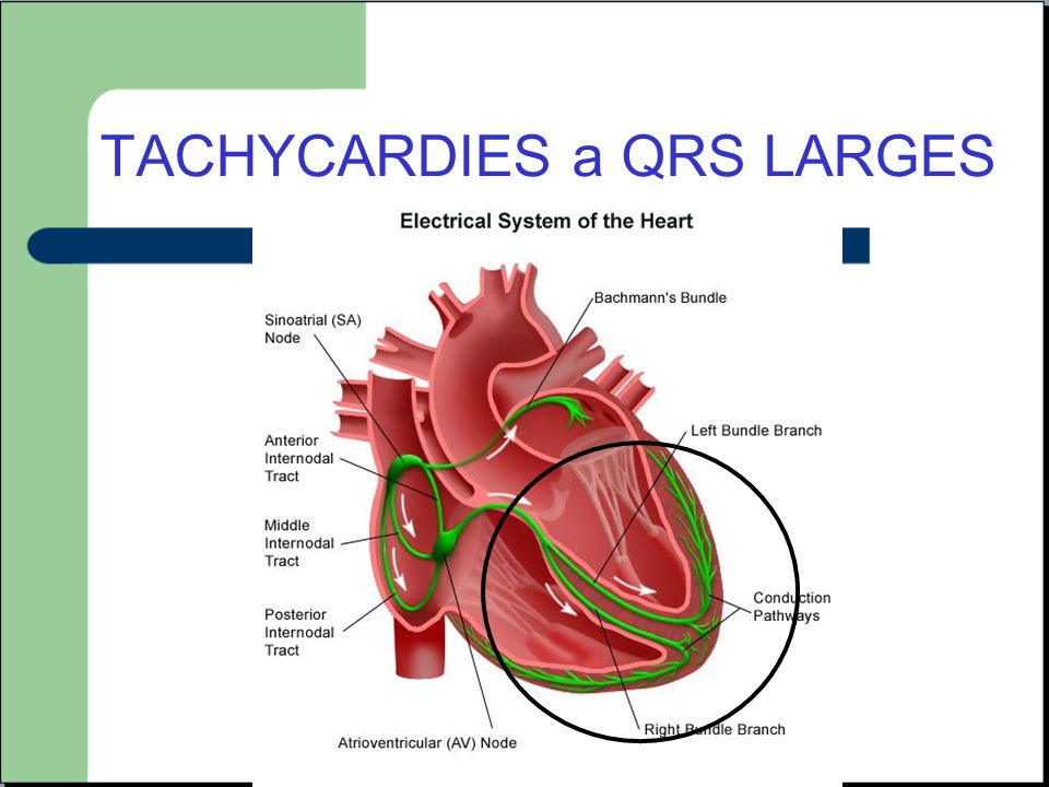TACHYCARDIES a QRS LARGES