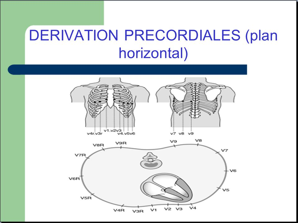 DERIVATION PRECORDIALES (plan horizontal)
