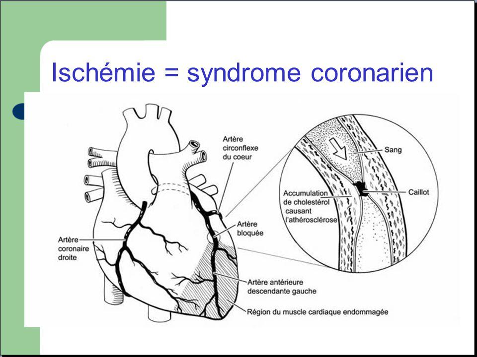Ischémie = syndrome coronarien Inadéquation entre les apports et les besoins en oxygène au myocarde.
