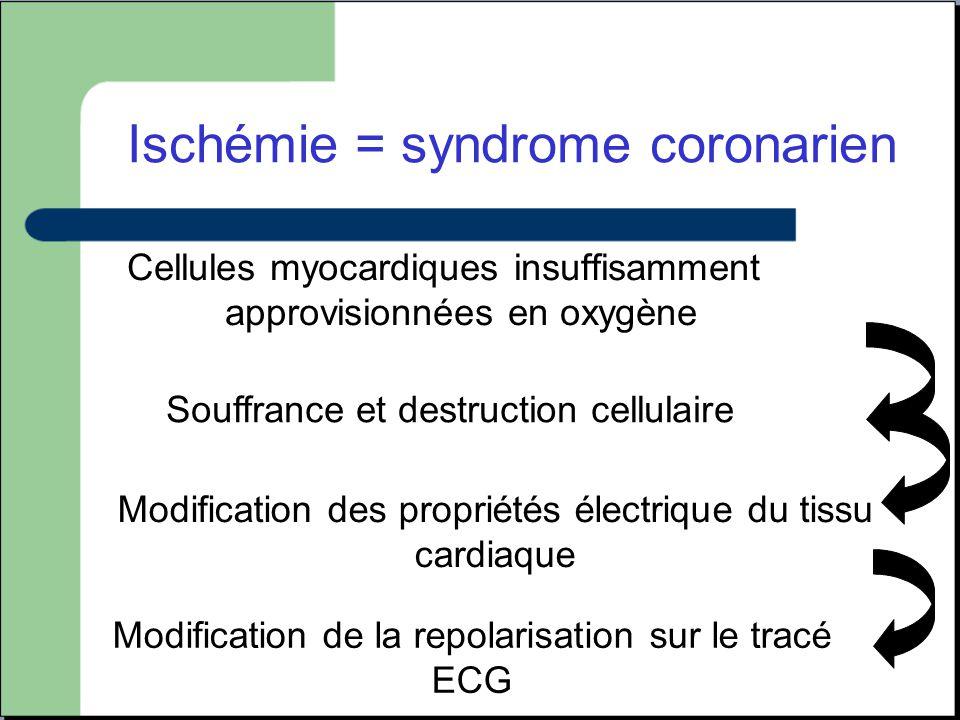 Cellules myocardiques insuffisamment approvisionnées en oxygène Souffrance et destruction cellulaire Modification des propriétés électrique du tissu c