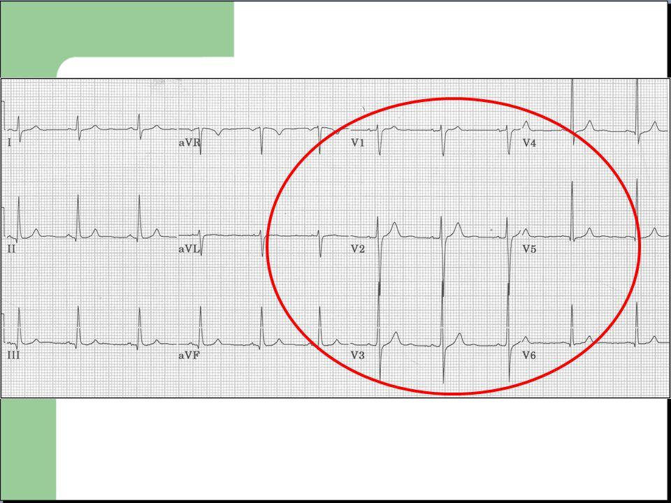 Deux possibilités  Tachycardie supra ventriculaire avec bloc de branche.