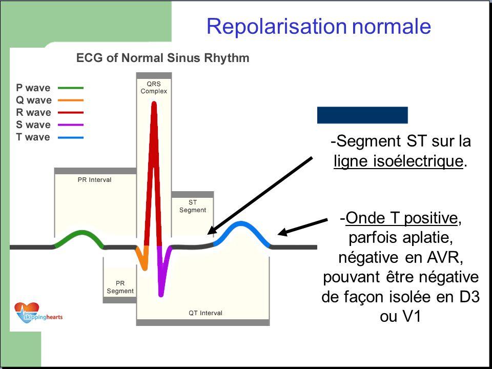 Repolarisation normale -Segment ST sur la ligne isoélectrique. -Onde T positive, parfois aplatie, négative en AVR, pouvant être négative de façon isol
