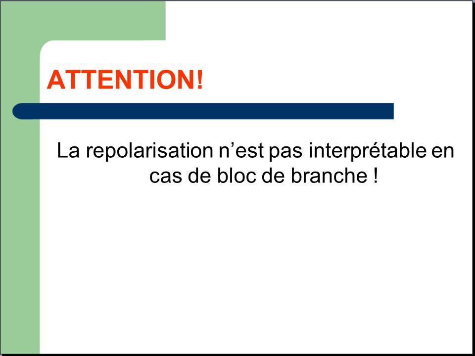 ATTENTION! La repolarisation n'est pas interprétable en cas de bloc de branche !