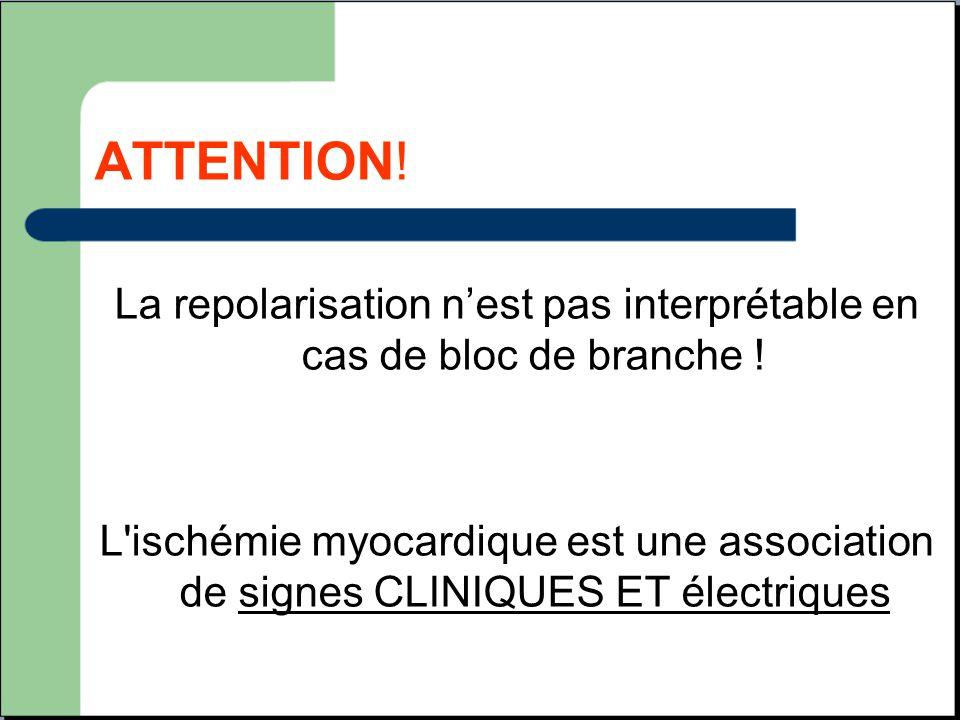 ATTENTION! La repolarisation n'est pas interprétable en cas de bloc de branche ! L'ischémie myocardique est une association de signes CLINIQUES ET éle