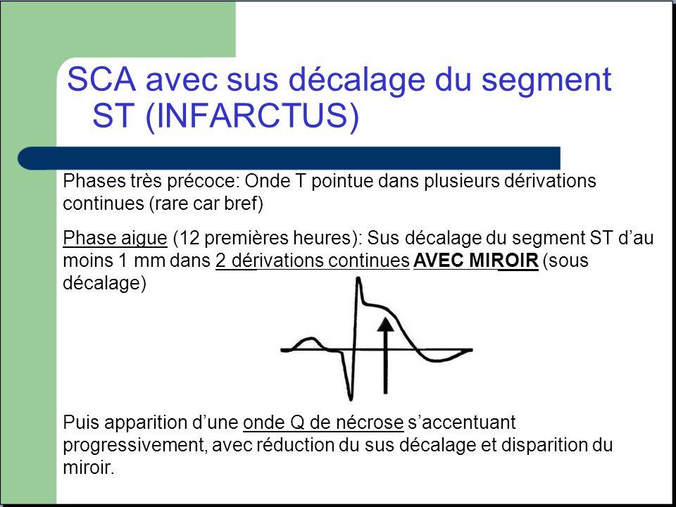 SCA avec sus décalage du segment ST (INFARCTUS) Phases très précoce: Onde T pointue dans plusieurs dérivations continues (rare car bref) Phase aigue (