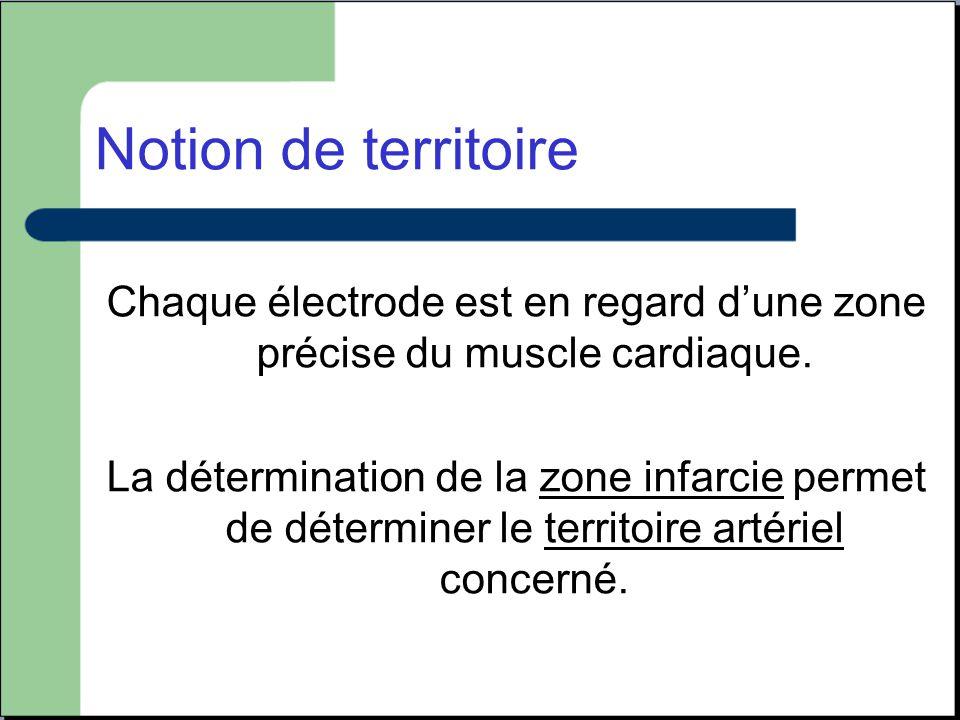 Notion de territoire Chaque électrode est en regard d'une zone précise du muscle cardiaque. La détermination de la zone infarcie permet de déterminer