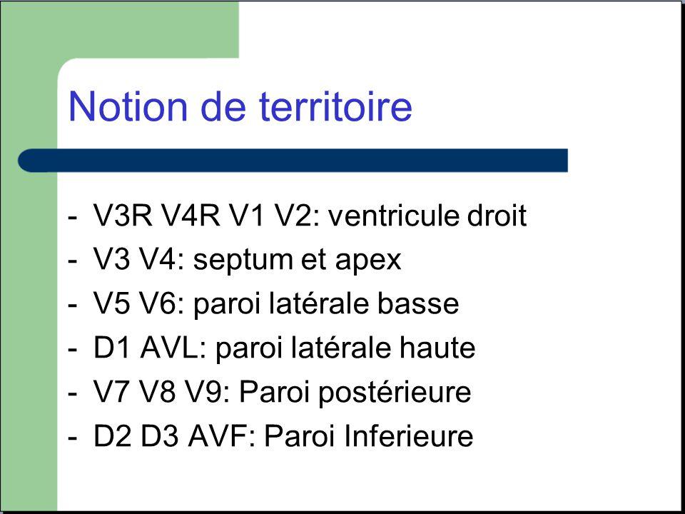 Notion de territoire -V3R V4R V1 V2: ventricule droit -V3 V4: septum et apex -V5 V6: paroi latérale basse -D1 AVL: paroi latérale haute -V7 V8 V9: Par
