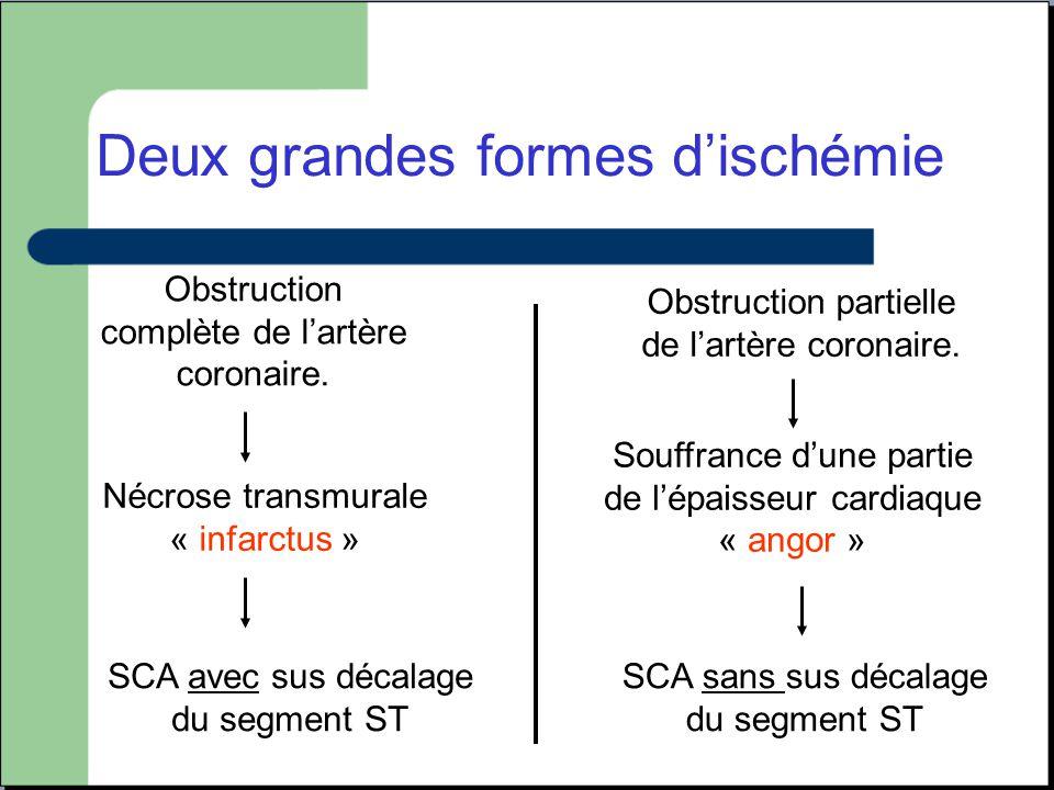 Deux grandes formes d'ischémie Obstruction complète de l'artère coronaire. Obstruction partielle de l'artère coronaire. Nécrose transmurale « infarctu