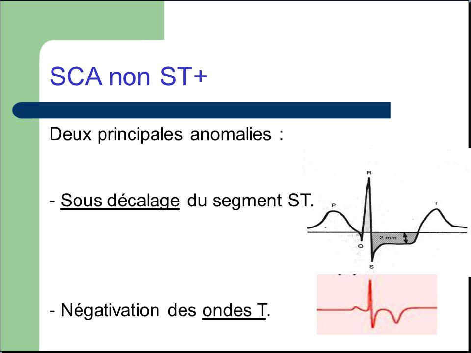 SCA non ST+ Deux principales anomalies : - Sous décalage du segment ST. - Négativation des ondes T.