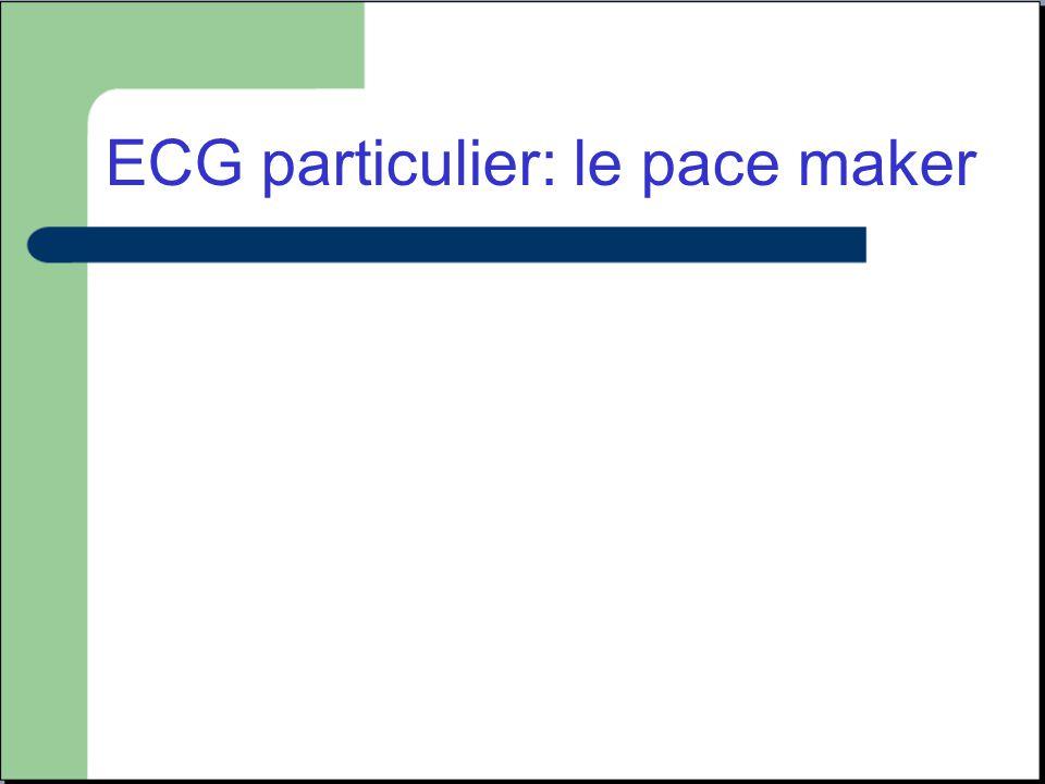 ECG particulier: le pace maker