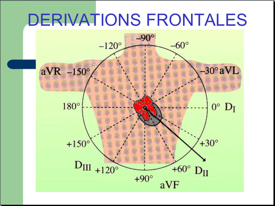 Notion de territoire -V3R V4R V1 V2: ventricule droit -V3 V4: septum et apex -V5 V6: paroi latérale basse -D1 AVL: paroi latérale haute -V7 V8 V9: Paroi postérieure -D2 D3 AVF: Paroi Inferieure