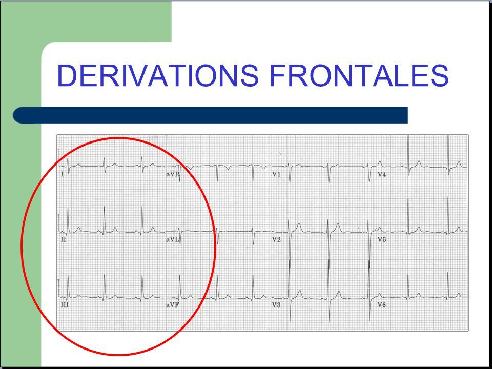 ECG electro-entrainé - Visualisation des « spikes » avant le QRS ou l onde P - Stimulation dans le VD donc effet bloc de branche : repolarisation non interpretable.