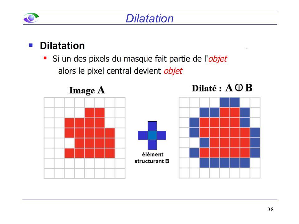 Dilatation 38