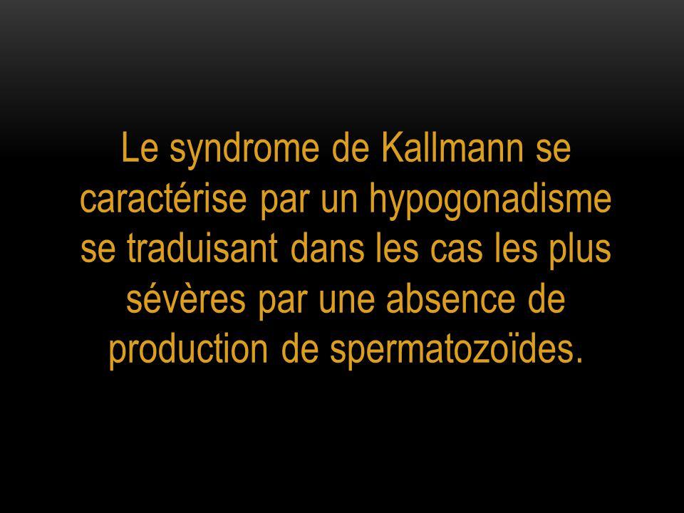 Le syndrome de Kallmann se caractérise par un hypogonadisme se traduisant dans les cas les plus sévères par une absence de production de spermatozoïde