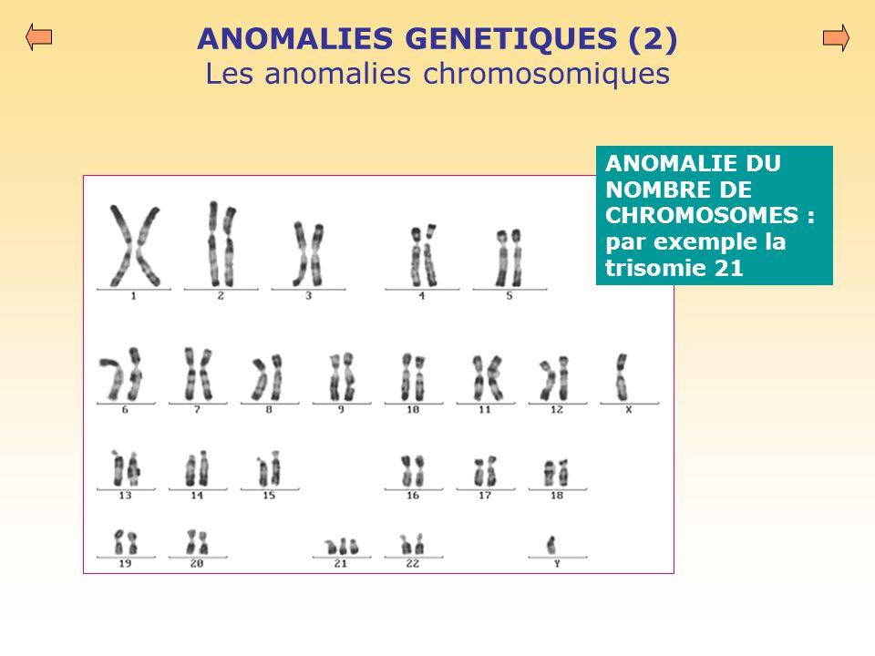 ANOMALIES GENETIQUES (2) Les anomalies chromosomiques ANOMALIE DU NOMBRE DE CHROMOSOMES : par exemple la trisomie 21