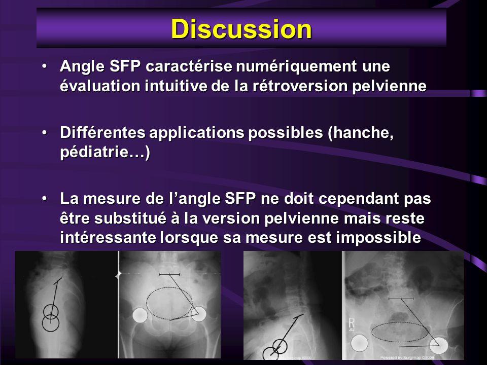 Discussion Angle SFP caractérise numériquement une évaluation intuitive de la rétroversion pelvienneAngle SFP caractérise numériquement une évaluation