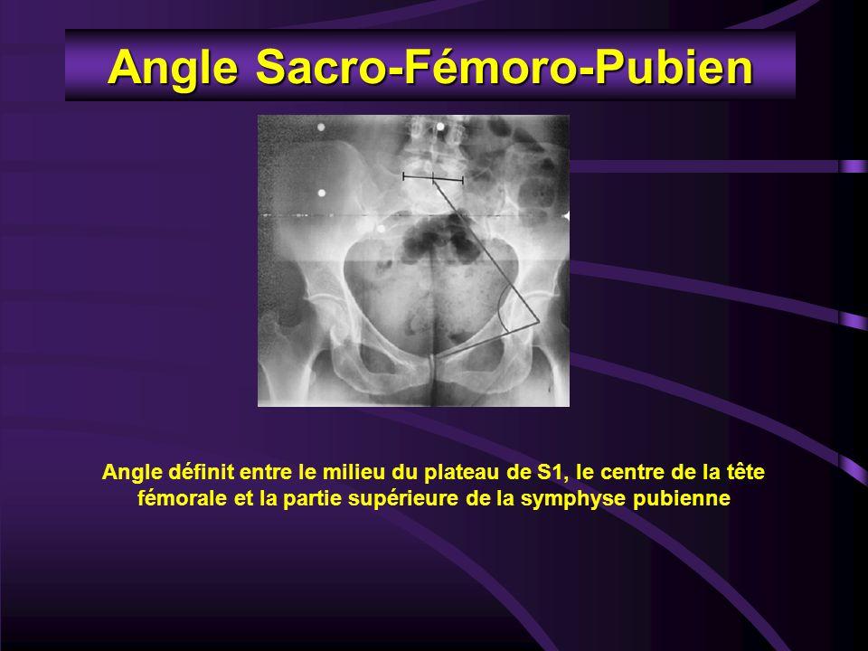 Angle Sacro-Fémoro-Pubien Angle définit entre le milieu du plateau de S1, le centre de la tête fémorale et la partie supérieure de la symphyse pubienn