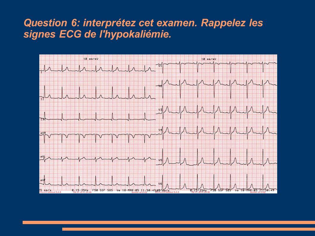 Question 6: interprétez cet examen. Rappelez les signes ECG de l'hypokaliémie.