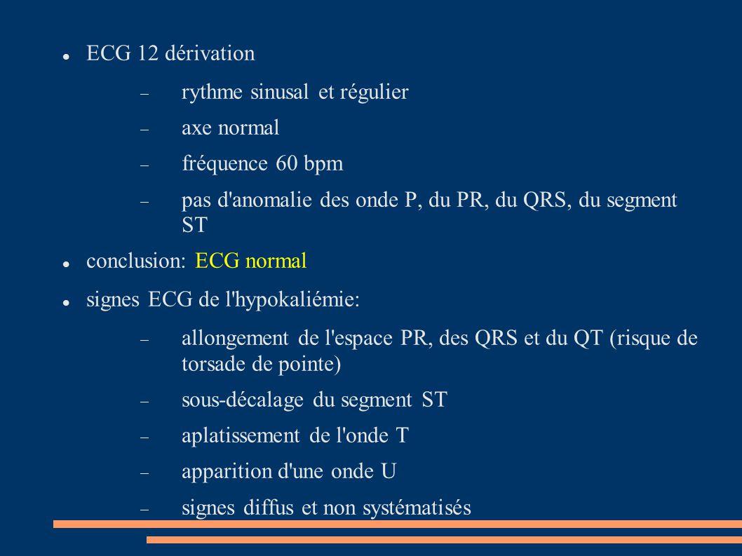ECG 12 dérivation  rythme sinusal et régulier  axe normal  fréquence 60 bpm  pas d'anomalie des onde P, du PR, du QRS, du segment ST conclusion: E