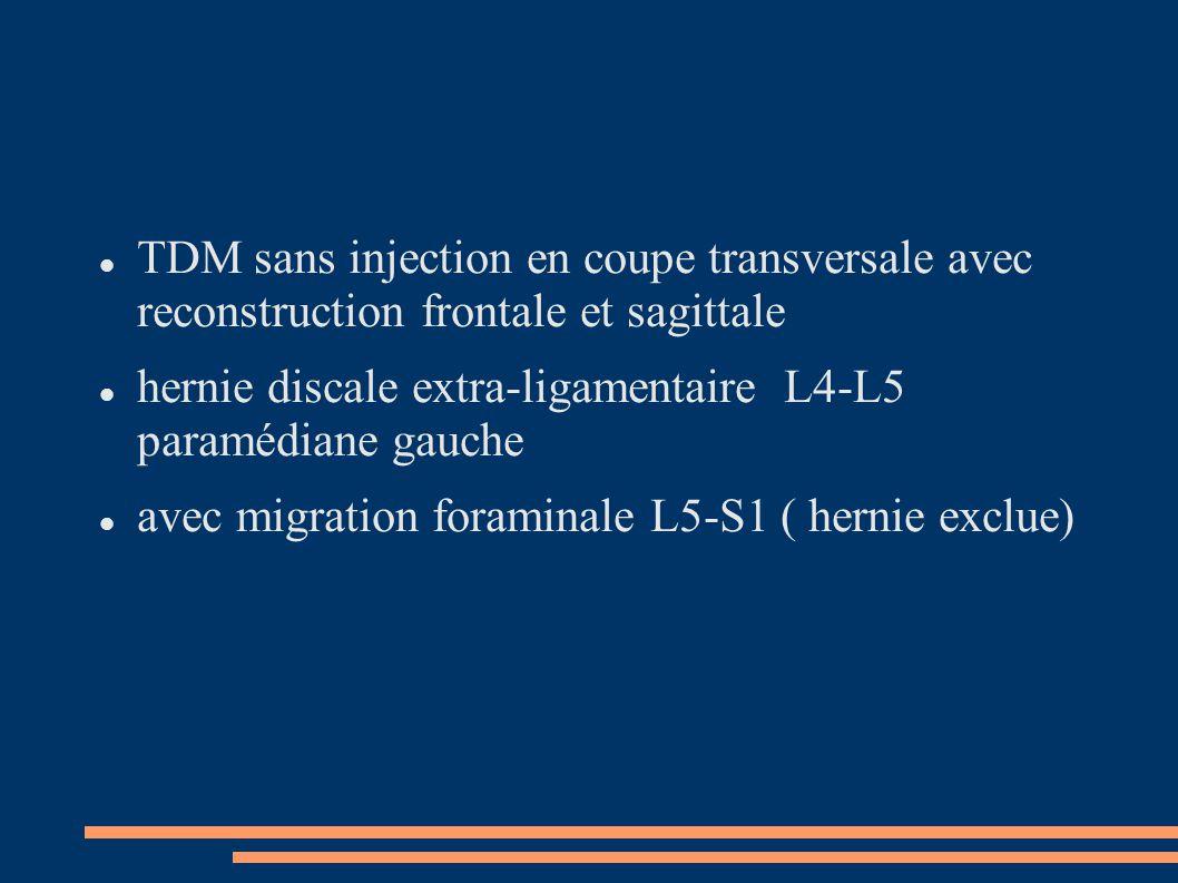 TDM sans injection en coupe transversale avec reconstruction frontale et sagittale hernie discale extra-ligamentaire L4-L5 paramédiane gauche avec mig
