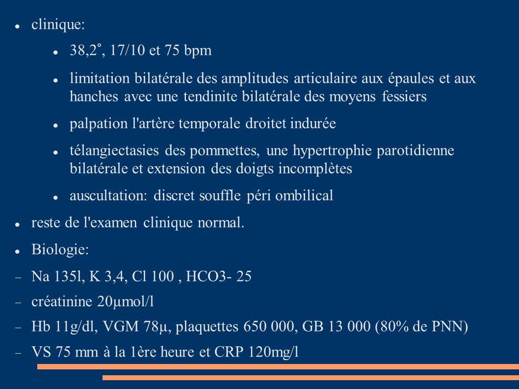 clinique: 38,2°, 17/10 et 75 bpm limitation bilatérale des amplitudes articulaire aux épaules et aux hanches avec une tendinite bilatérale des moyens