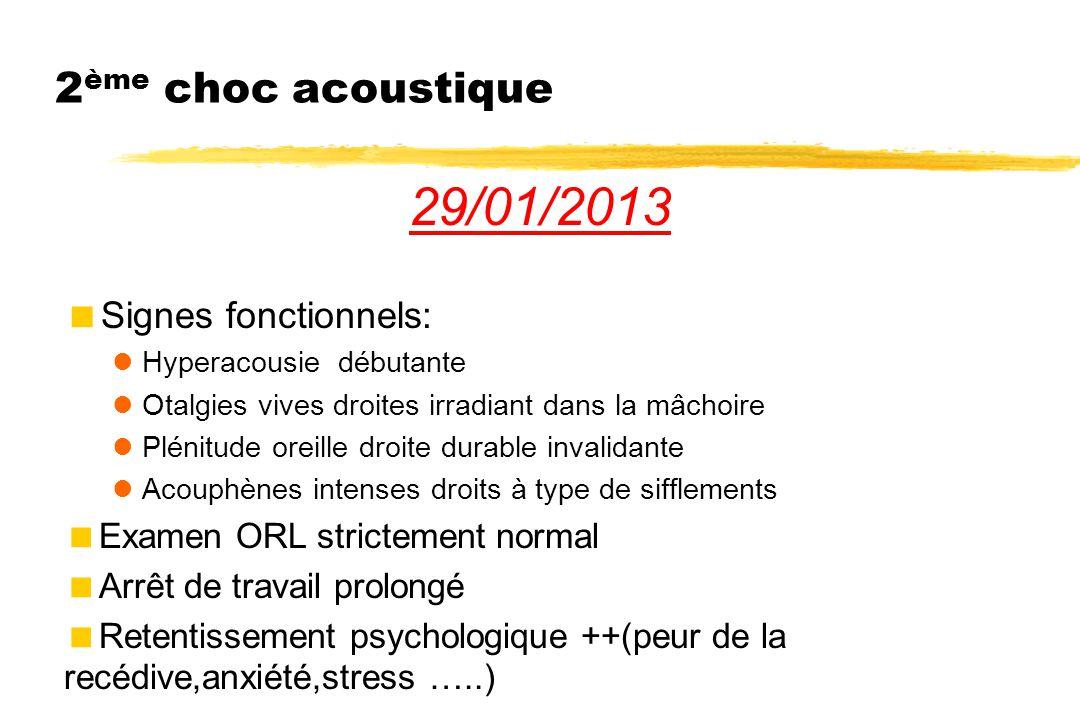 2 ème choc acoustique 29/01/2013  Signes fonctionnels: Hyperacousie débutante Otalgies vives droites irradiant dans la mâchoire Plénitude oreille dro