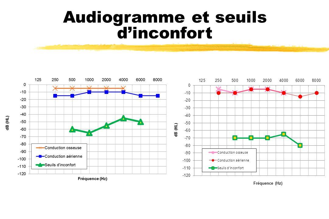 Audiogramme et seuils d'inconfort