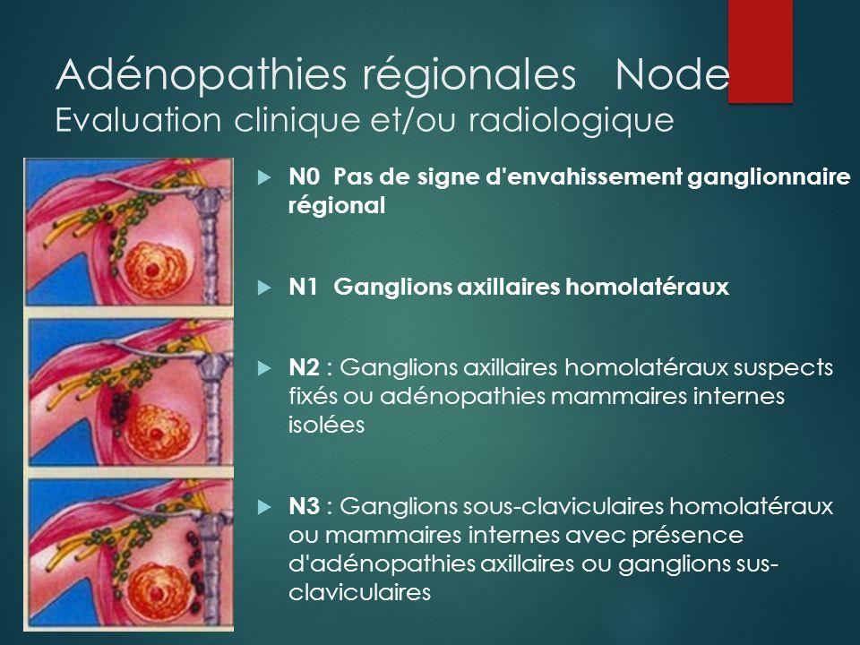 Classification pTNM Adénopathies régionales Node Evaluation histologique  pN0 Pas d'adénopathie métastatique histologique  pN0 (i+) : pas d' d'atteinte histologique mais IHC+ avec amas cellulaires ≤ 0,2mm  pN0 (i-) : IHC négative  pN1 Envahissement de 1 à 3 ganglions axillaires  pN1 (mi+) micrométastases de 0,2 à 2 mm